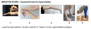 Hypermobility Image