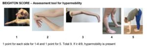 Hypermobility test
